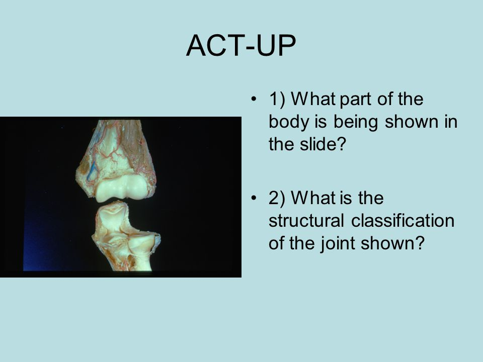 ACT-UP 1) What part of the body is being shown in the slide