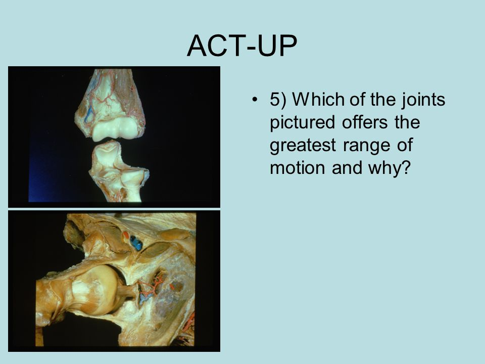 ACT-UP 5) Which of the joints pictured offers the greatest range of motion and why