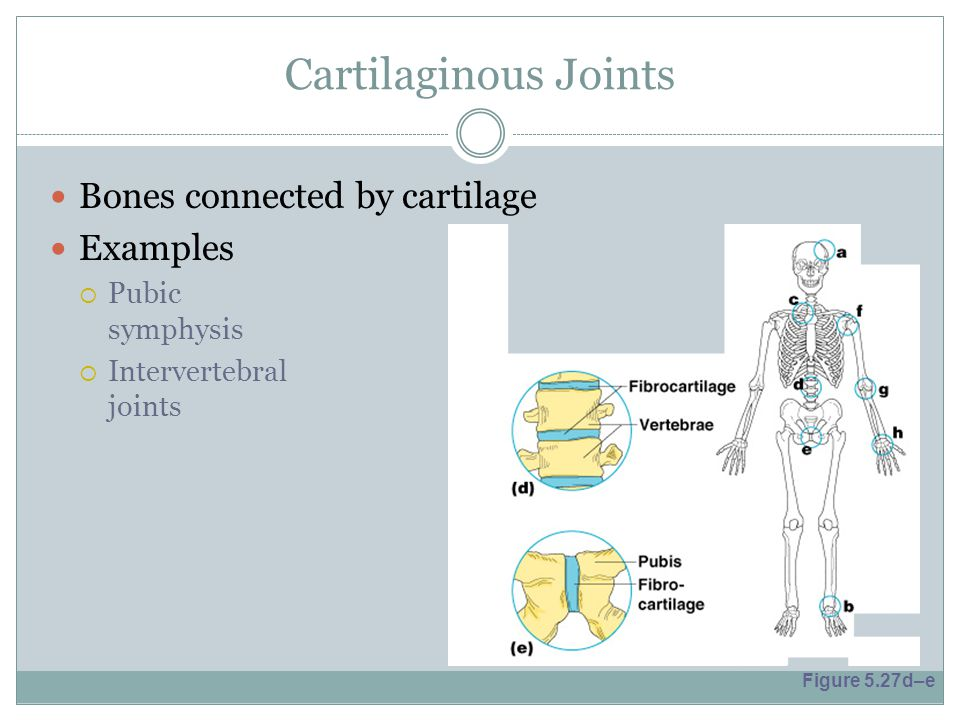 Cartilaginous Joints Bones connected by cartilage Examples