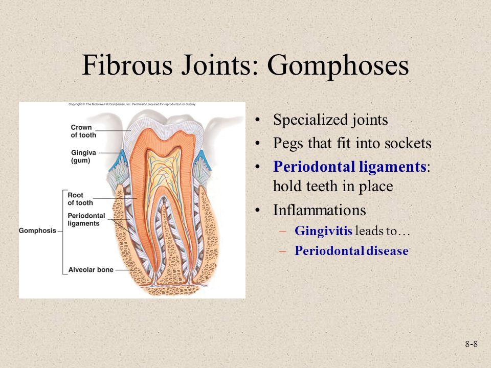 Fibrous Joints: Gomphoses
