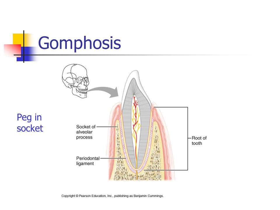 Gomphosis Peg in socket