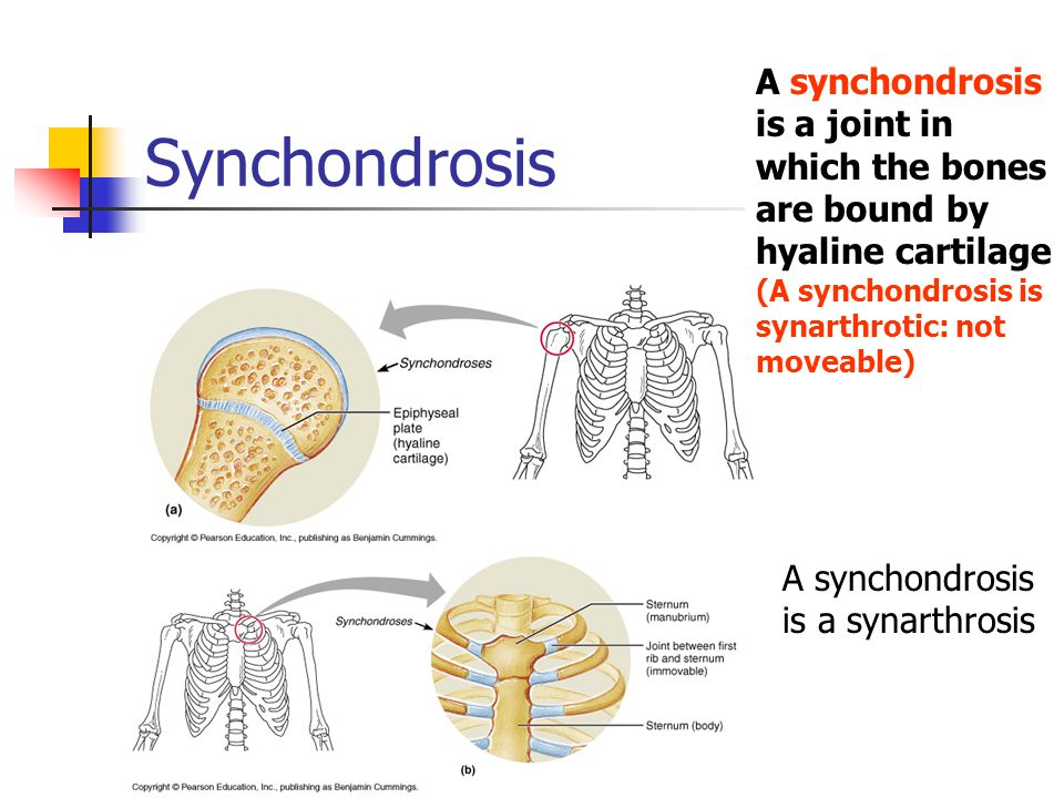 A synchondrosis is a joint in which the bones are bound by hyaline cartilage (A synchondrosis is synarthrotic: not moveable)