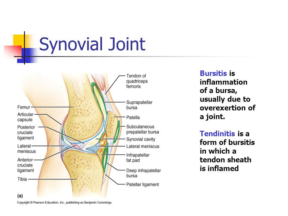 Synovial Joint Bursitis is inflammation of a bursa, usually due to overexertion of a joint.