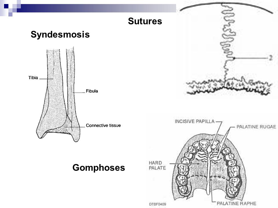 Sutures Syndesmosis Gomphoses
