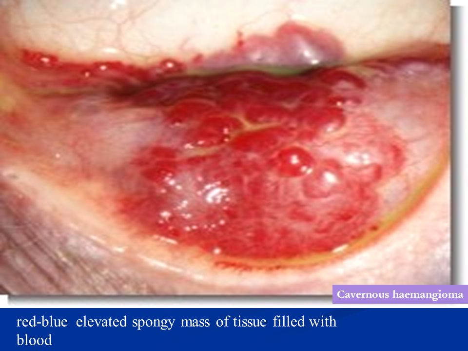 red-blue elevated spongy mass of tissue filled with blood