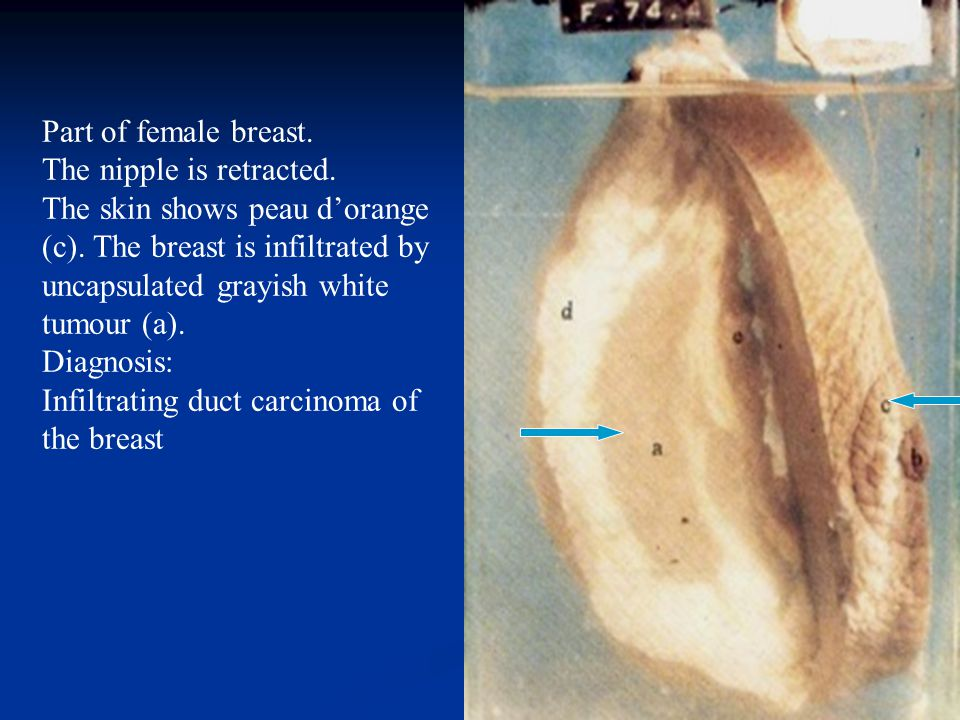 Part of female breast. The nipple is retracted.