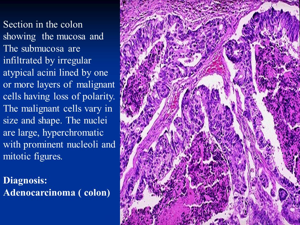 Section in the colon showing the mucosa and The submucosa are infiltrated by irregular atypical acini lined by one or more layers of malignant cells having loss of polarity.