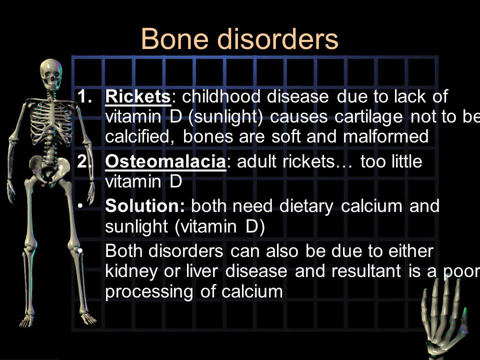 Bone disorders Rickets: childhood disease due to lack of vitamin D (sunlight) causes cartilage not to be calcified, bones are soft and malformed.