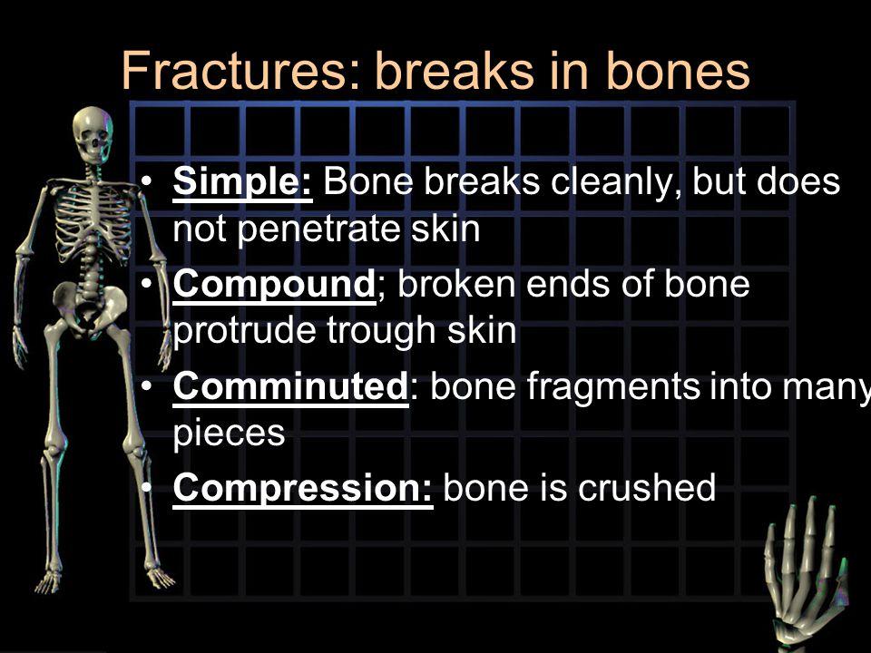 Fractures: breaks in bones
