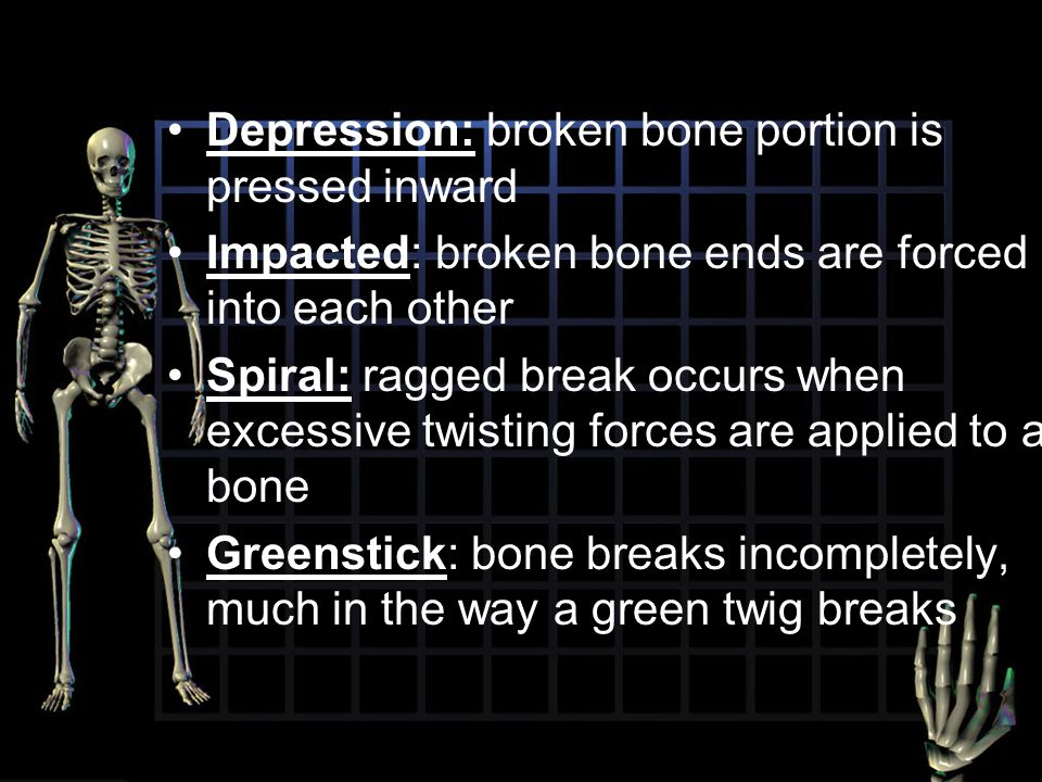 Depression: broken bone portion is pressed inward