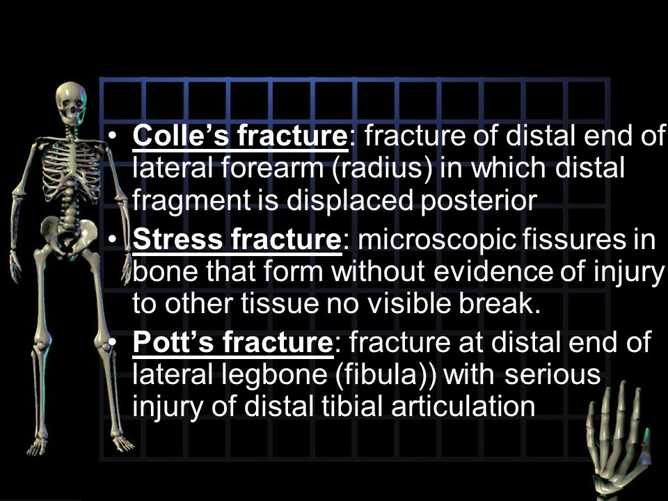 Colle's fracture: fracture of distal end of lateral forearm (radius) in which distal fragment is displaced posterior