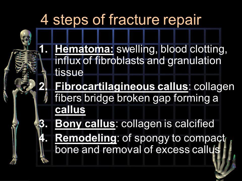 4 steps of fracture repair