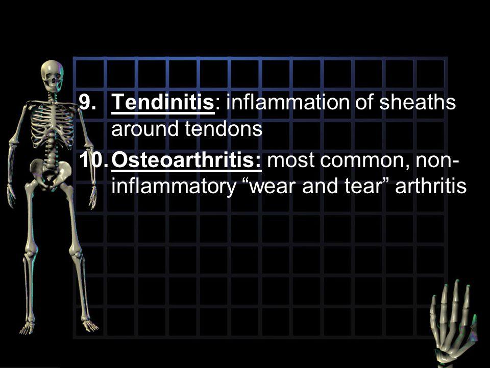 Tendinitis: inflammation of sheaths around tendons
