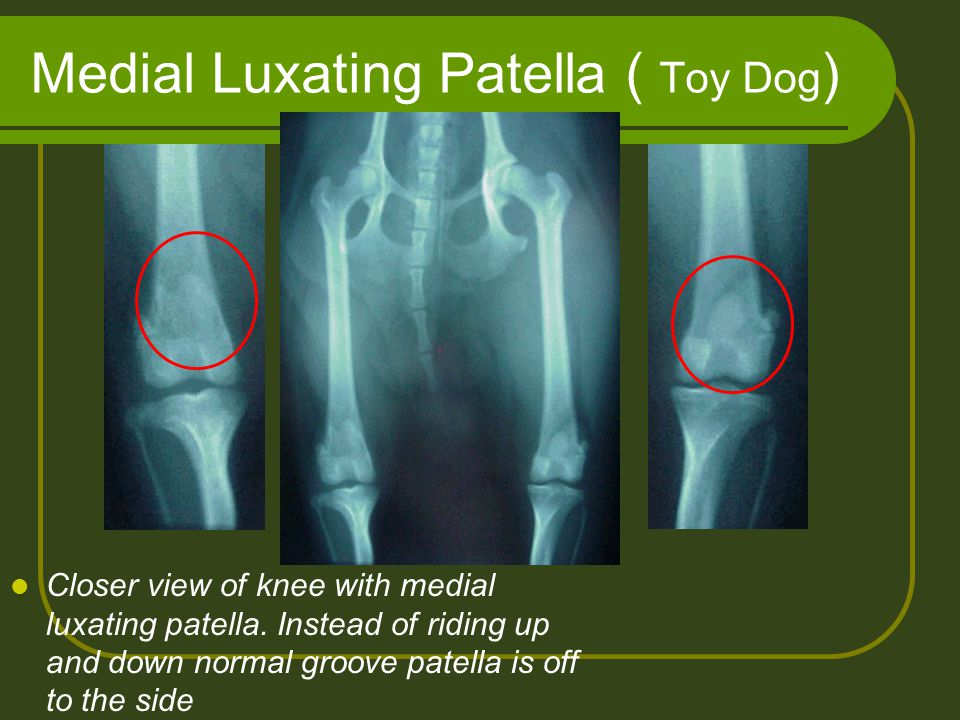 Medial Luxating Patella ( Toy Dog)