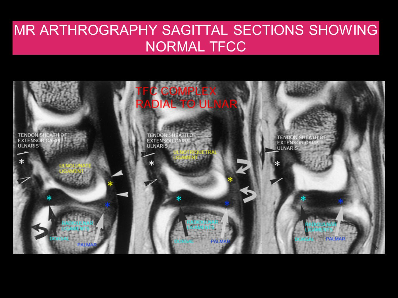 MR ARTHROGRAPHY SAGITTAL SECTIONS SHOWING