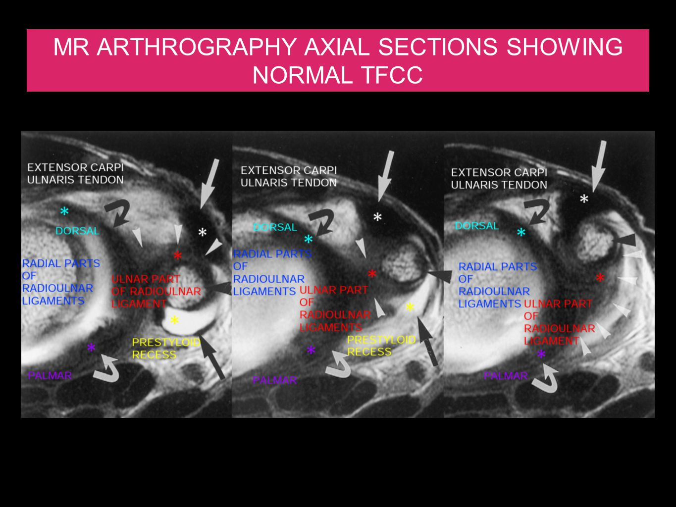 MR ARTHROGRAPHY AXIAL SECTIONS SHOWING