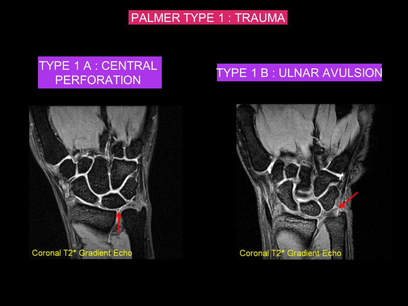 PALMER TYPE 1 : TRAUMA TYPE 1 A : CENTRAL PERFORATION TYPE 1 B : ULNAR AVULSION