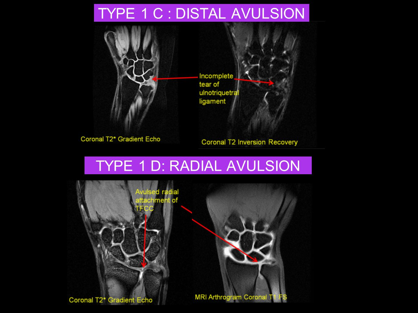 TYPE 1 C : DISTAL AVULSION