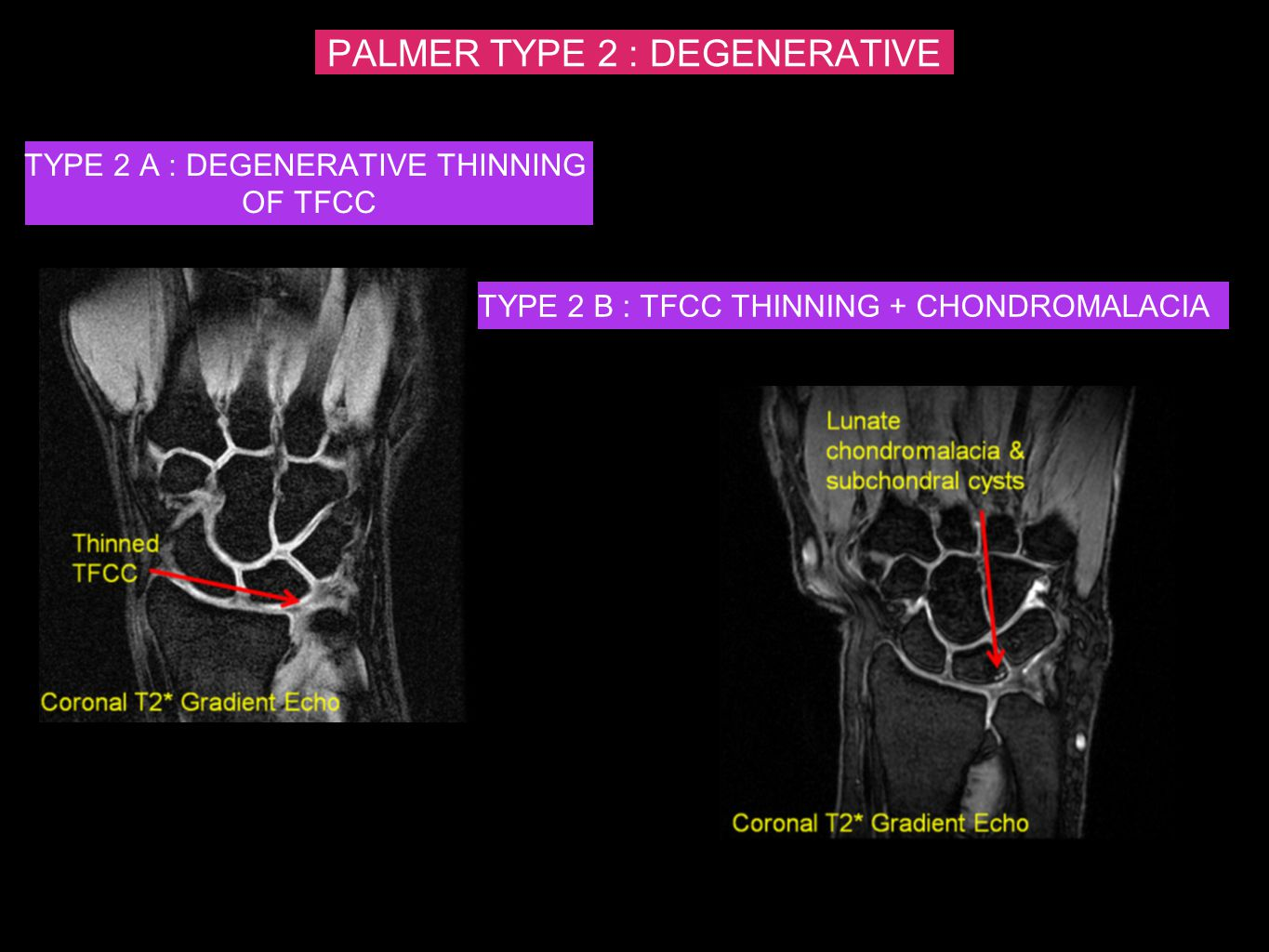 PALMER TYPE 2 : DEGENERATIVE