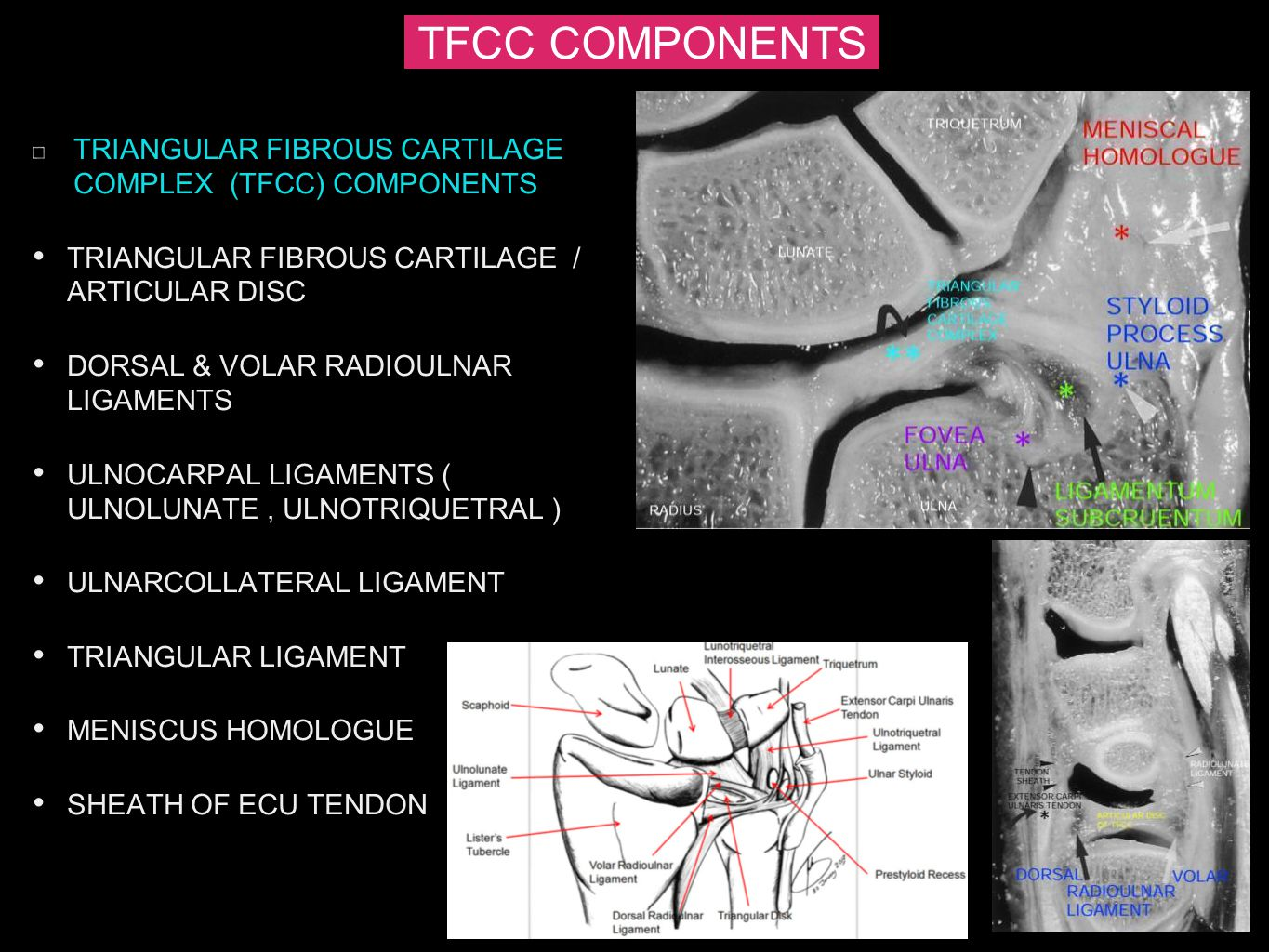 TFCC COMPONENTS TRIANGULAR FIBROUS CARTILAGE COMPLEX (TFCC) COMPONENTS