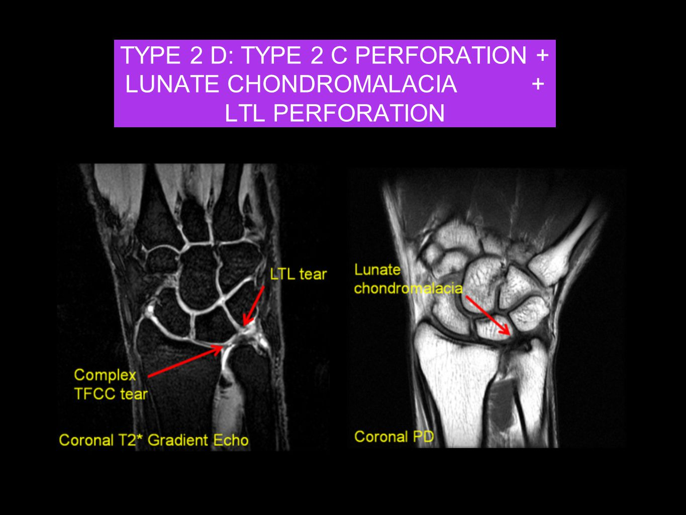 TYPE 2 D: TYPE 2 C PERFORATION + LUNATE CHONDROMALACIA +