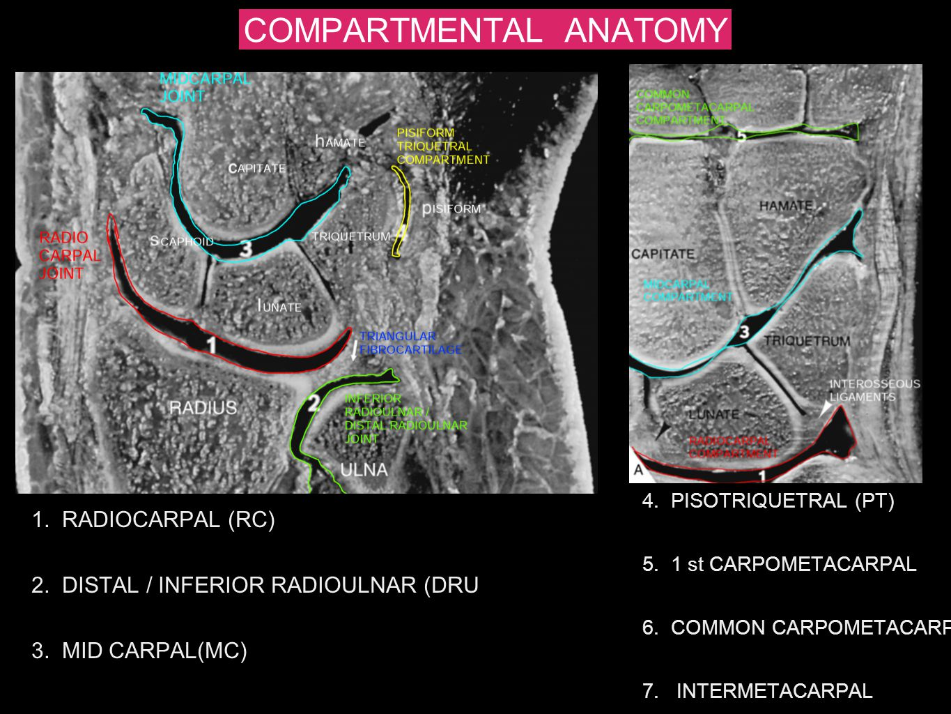 COMPARTMENTAL ANATOMY