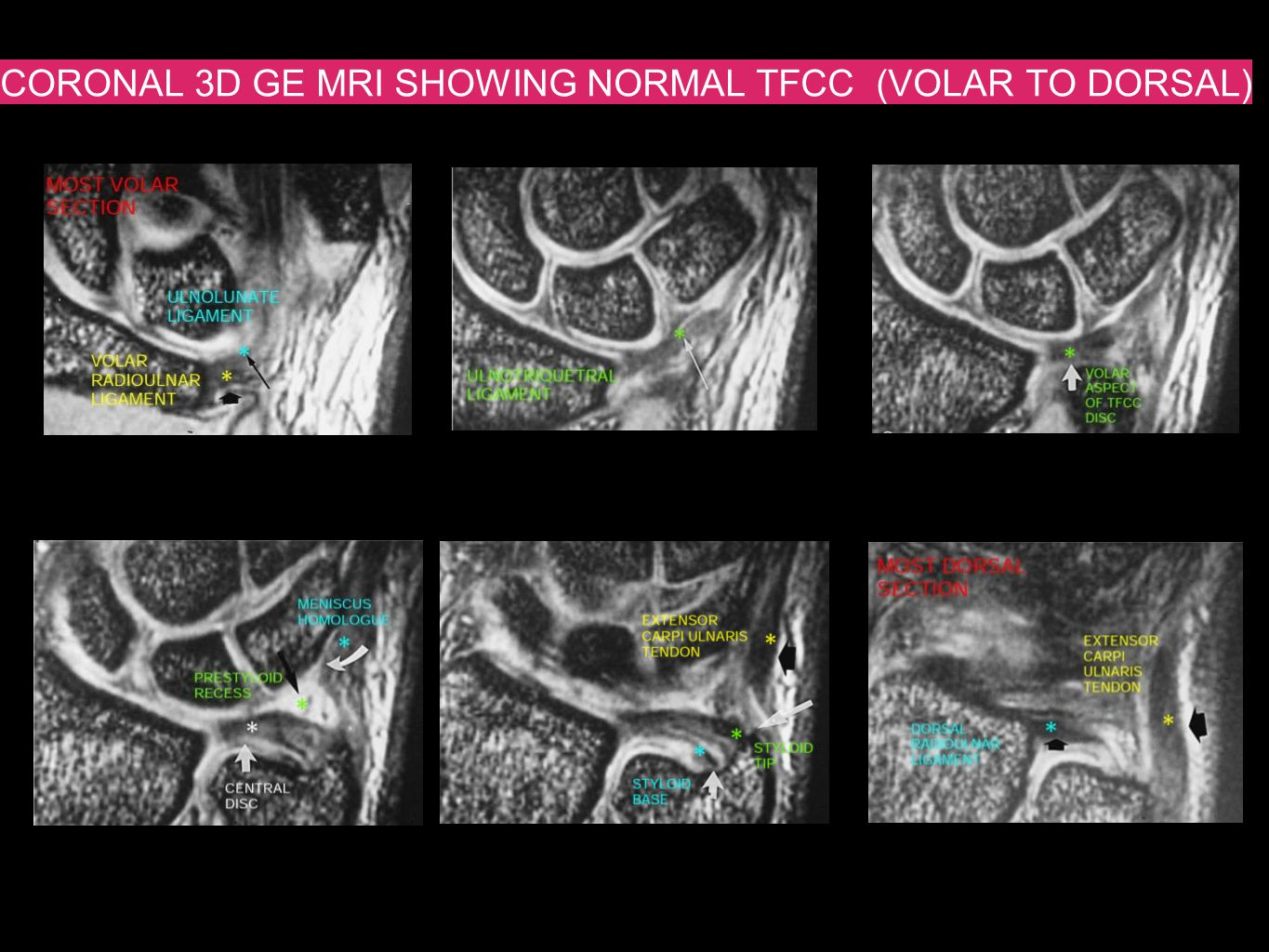 CORONAL 3D GE MRI SHOWING NORMAL TFCC (VOLAR TO DORSAL)