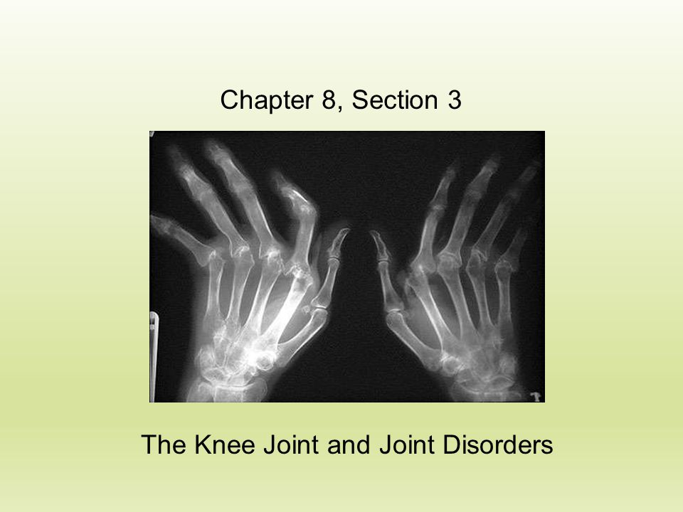 The Knee Joint and Joint Disorders