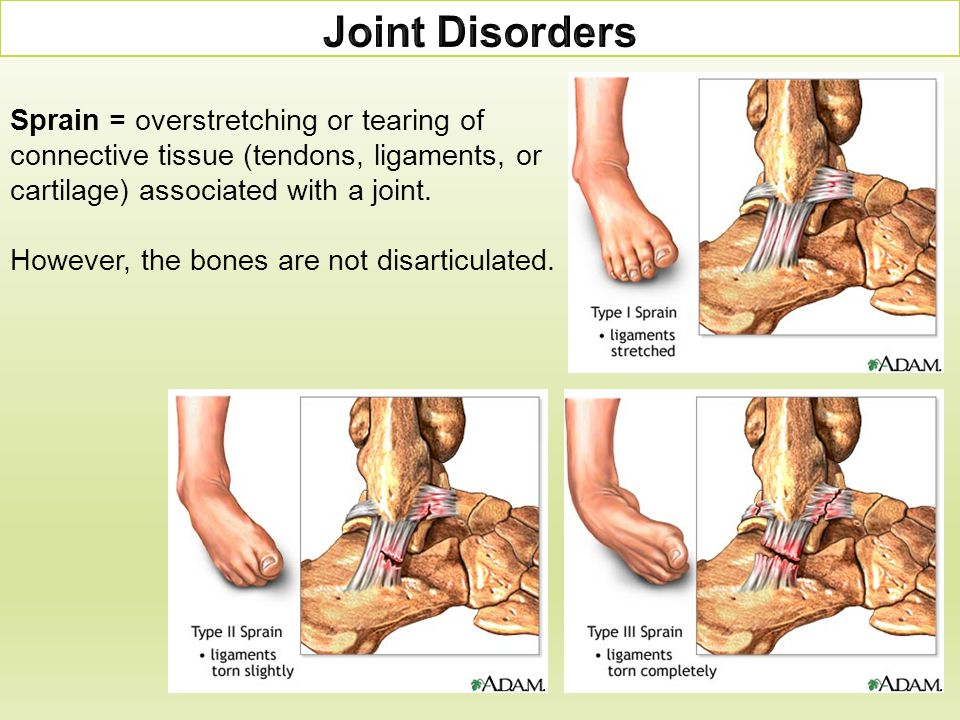 Joint Disorders Sprain = overstretching or tearing of connective tissue (tendons, ligaments, or cartilage) associated with a joint.