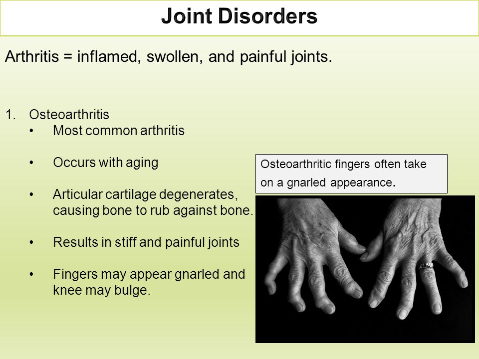 Joint Disorders Arthritis = inflamed, swollen, and painful joints.