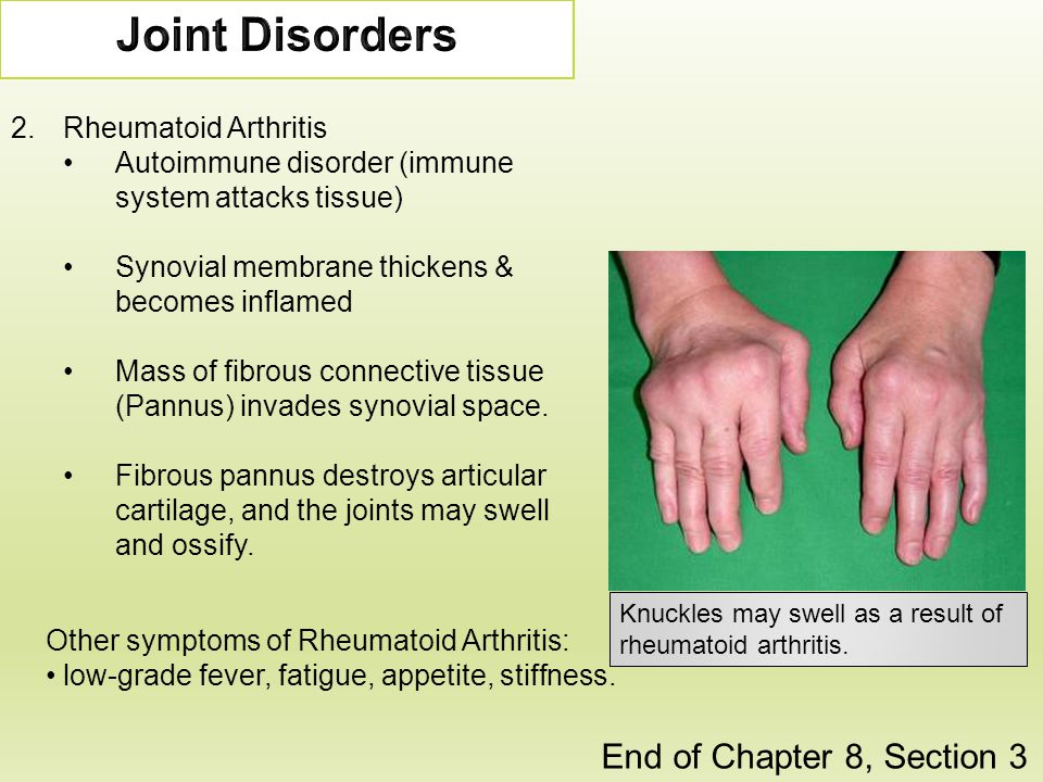 Joint Disorders End of Chapter 8, Section 3 Rheumatoid Arthritis