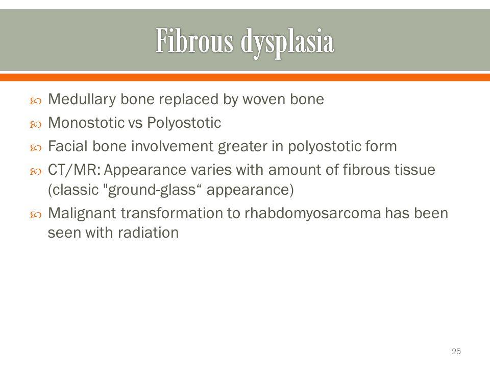 Fibrous dysplasia Medullary bone replaced by woven bone