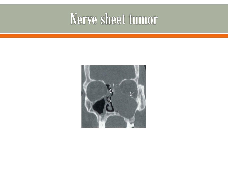 Nerve sheet tumor