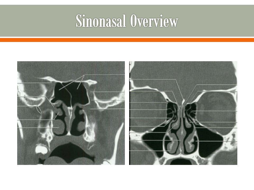 Sinonasal Overview
