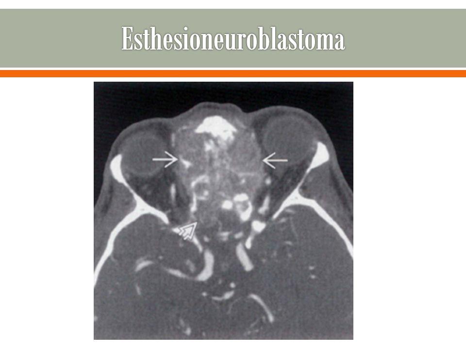 Esthesioneuroblastoma