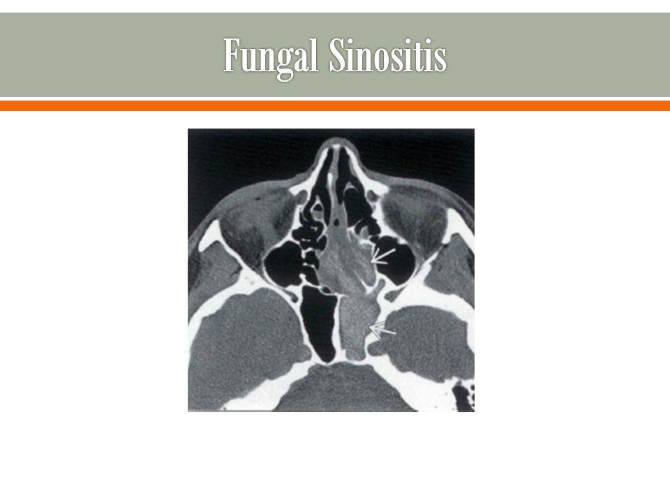Fungal Sinositis