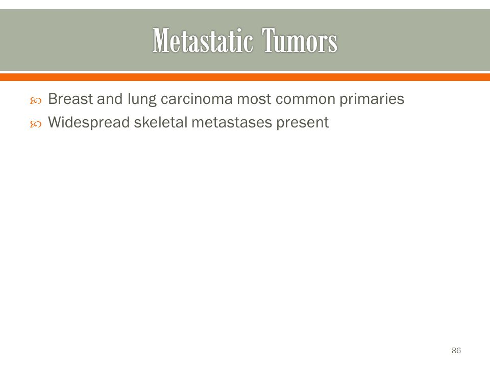 Metastatic Tumors Breast and lung carcinoma most common primaries