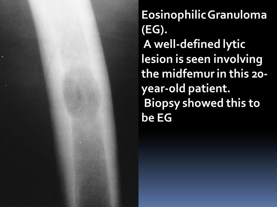 Eosinophilic Granuloma (EG).