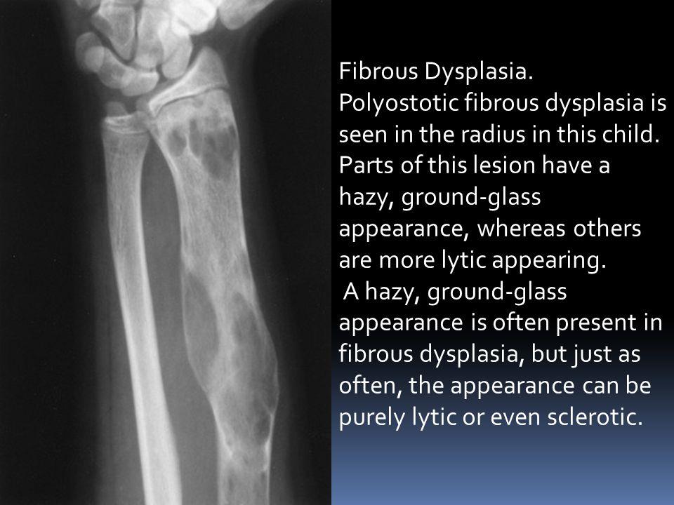Fibrous Dysplasia.