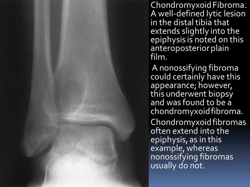 Chondromyxoid Fibroma