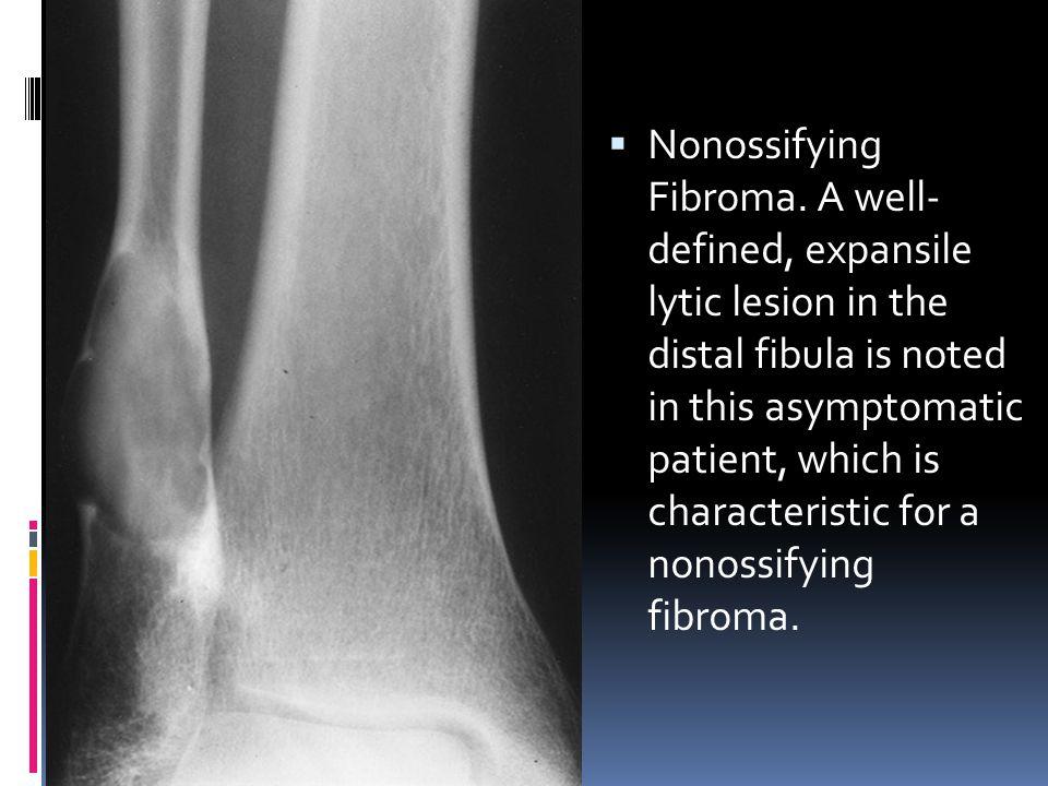 Nonossifying Fibroma.