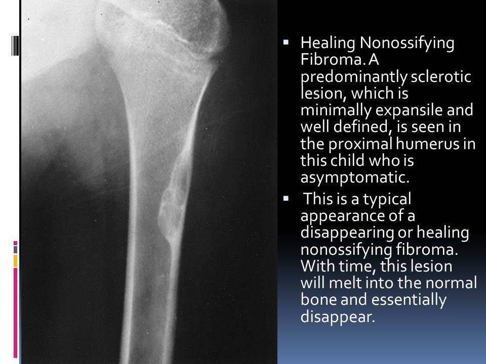 Healing Nonossifying Fibroma