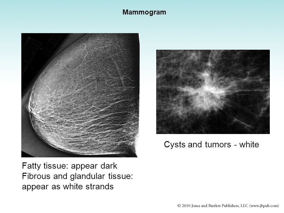 Cysts and tumors - white