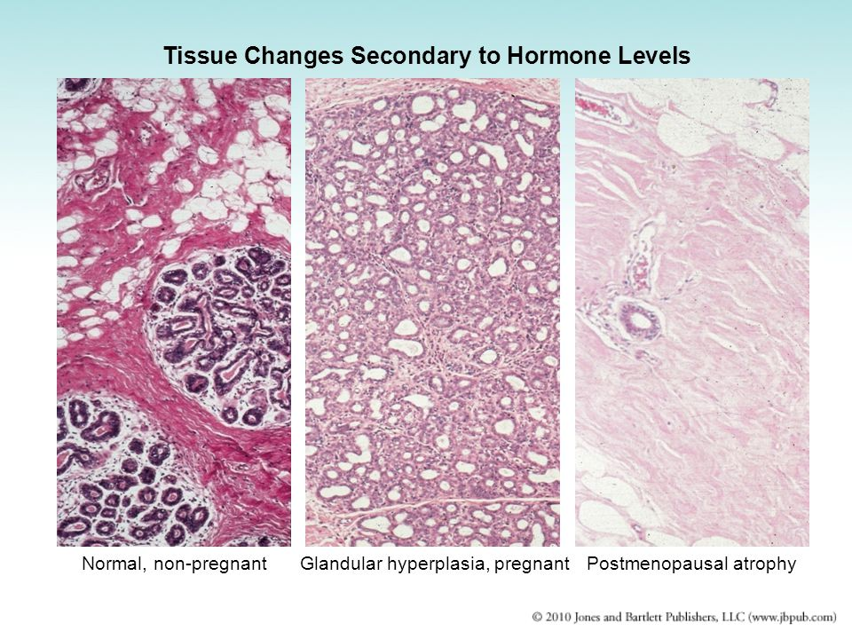 Tissue Changes Secondary to Hormone Levels