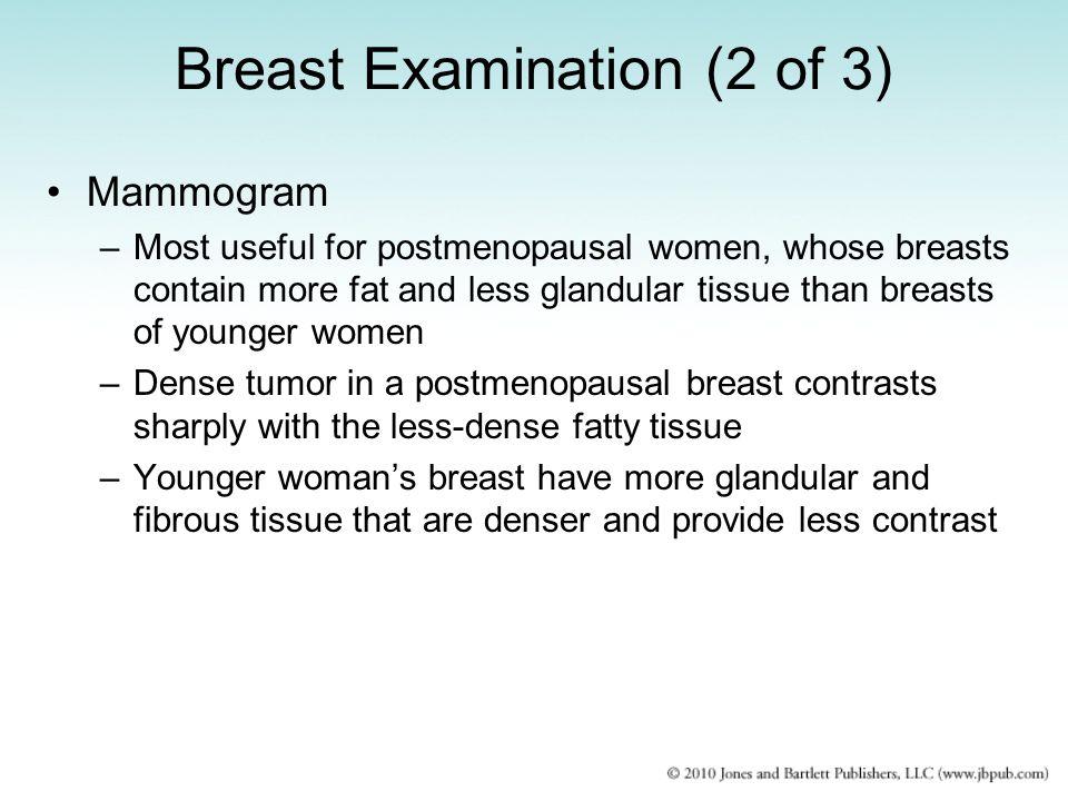 Breast Examination (2 of 3)