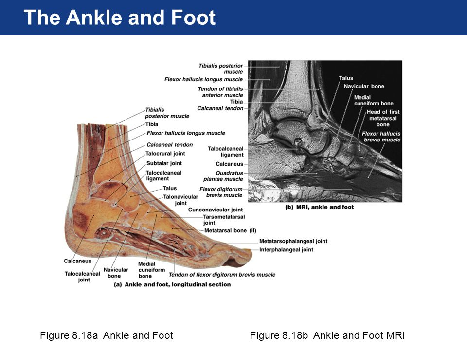 The Ankle and Foot Figure 8.18a Ankle and Foot
