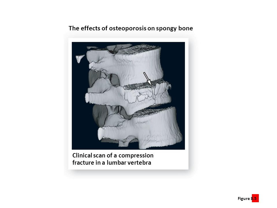 The effects of osteoporosis on spongy bone
