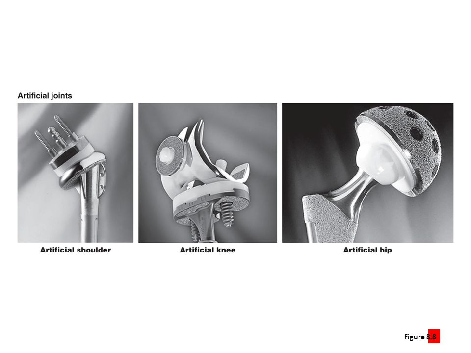Figure 8.8.5 Arthritis can disrupt normal joint structure and function