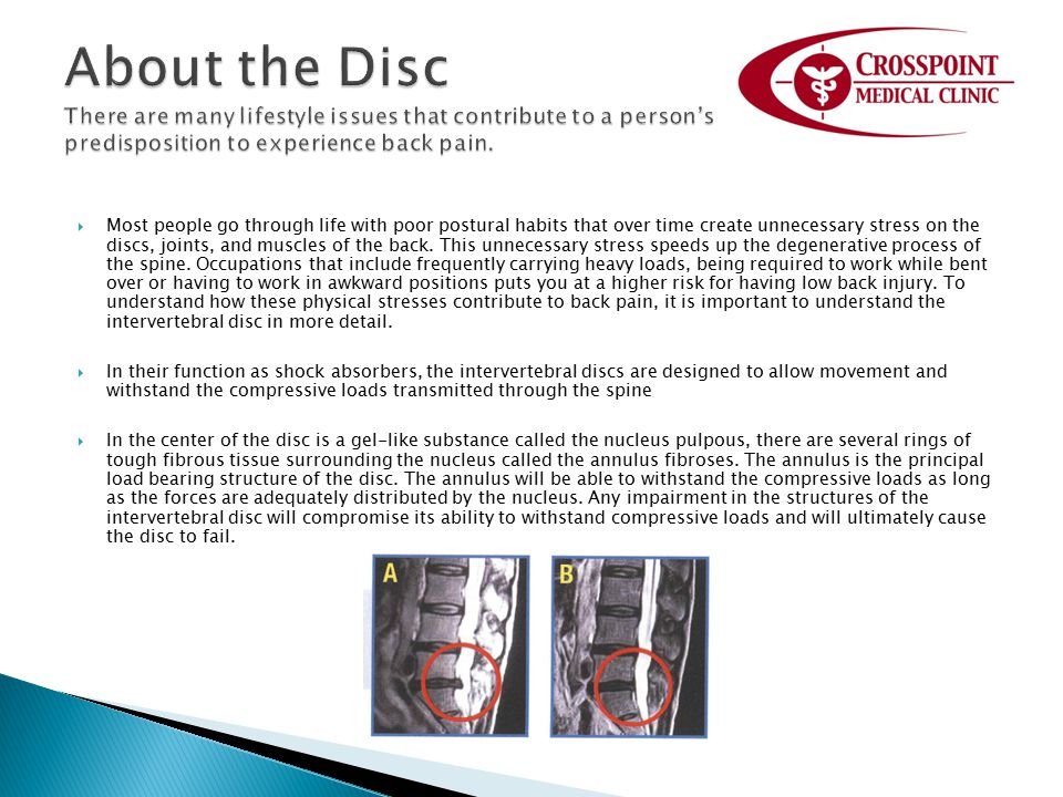 About the Disc There are many lifestyle issues that contribute to a person's predisposition to experience back pain.