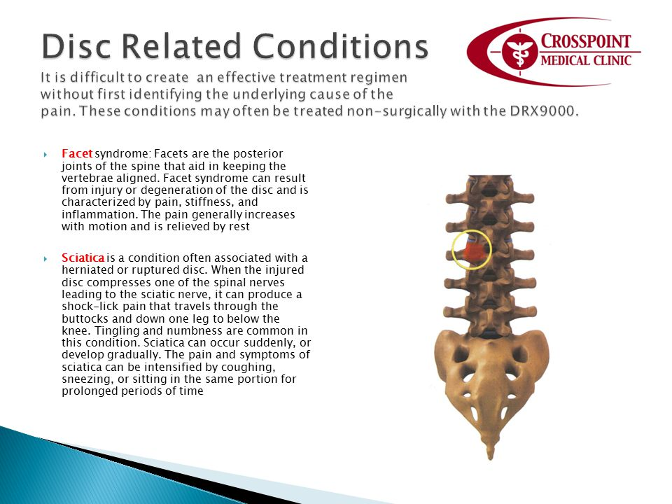 Disc Related Conditions It is difficult to create an effective treatment regimen without first identifying the underlying cause of the pain. These conditions may often be treated non-surgically with the DRX9000.